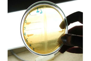 Роль драже «Ламиналакт» в профилактике и восстановлении здоровья